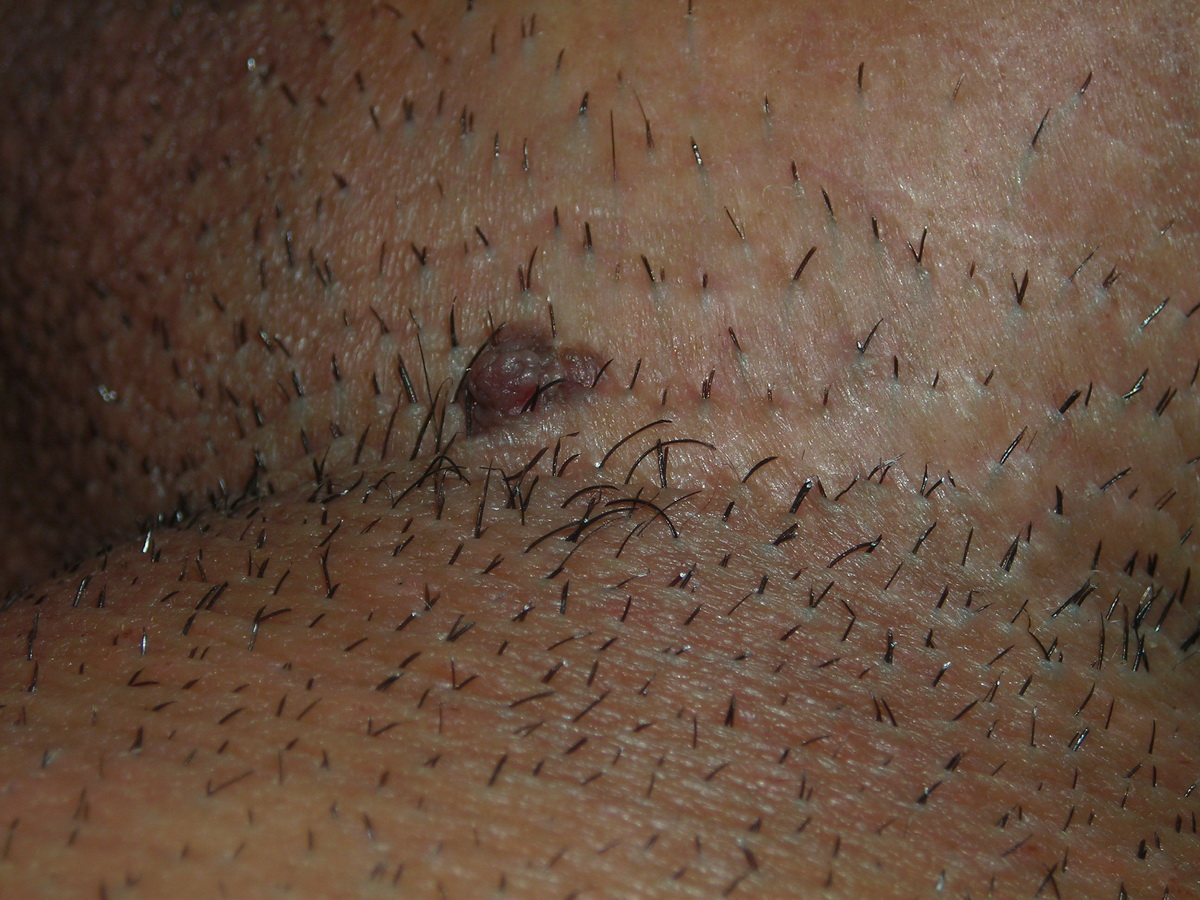 Skin Tags On Base Of Penile Shaft